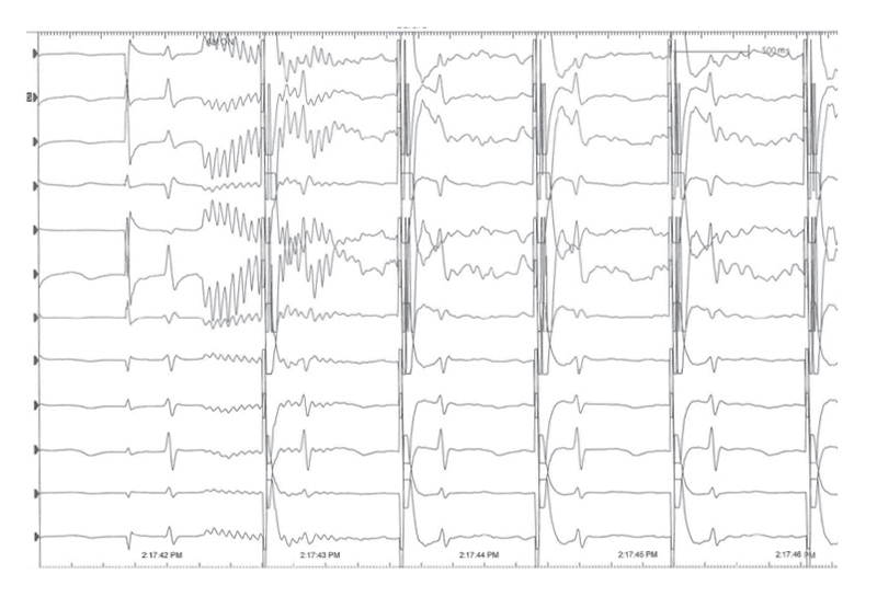 <strong>Screen 1:</strong>  Depicts heart activity with unaddressed electrical noise on the line.